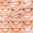 Examples of female smiles — ストック写真
