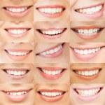Examples of female smiles — Stock Photo