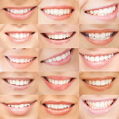 Examples of female smiles — Stock Photo