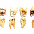 Extracted teeth on a white background — Stock Photo