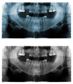 Panoramic dental X-Ray images — Stock Photo