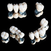 Ceramic teeth set — Stock Photo