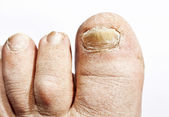 Fungus infection on nails — Stock fotografie