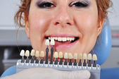 Shade determination tooth — Stock Photo