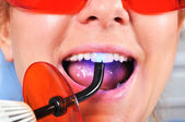 Tooth filling — Stock Photo