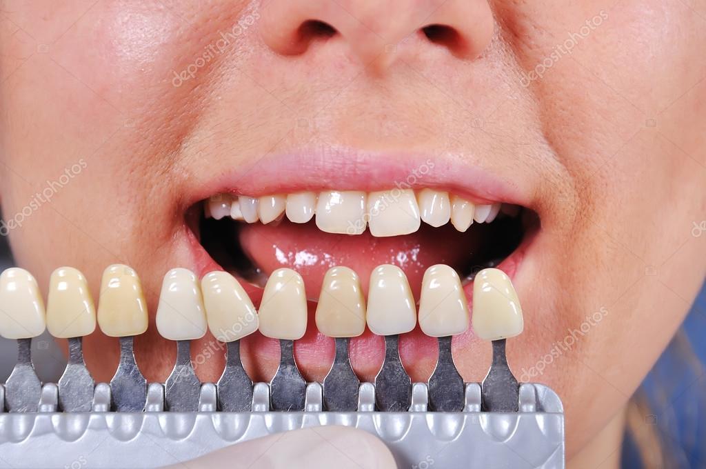 Цвета пластмассы для зубов