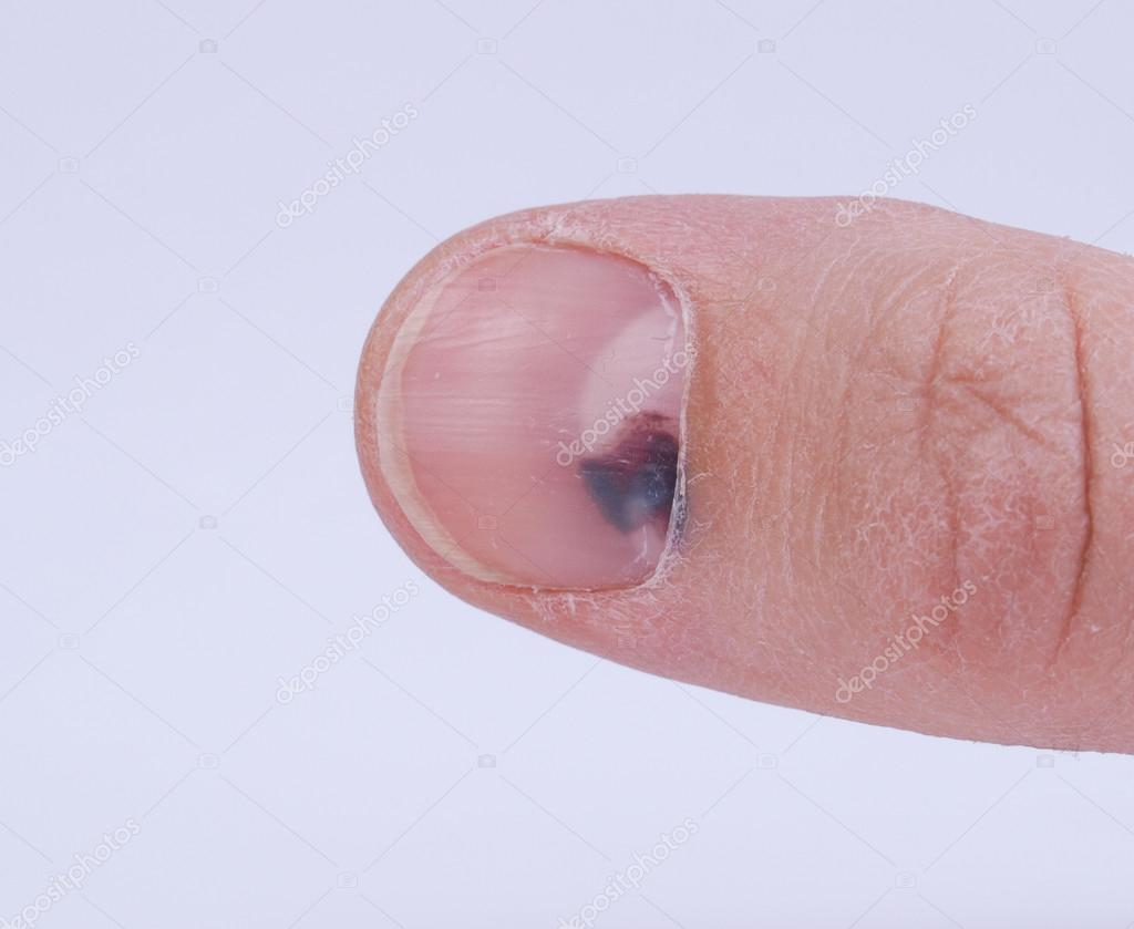 Subungual hematoma - collection of blood underneath fingernail (black toenail) medical condition. Aka runner or tennis toe — Stock Photo #19387701