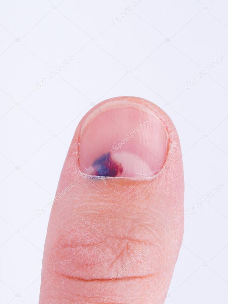 Большой палец без ногтя