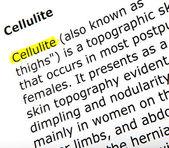 Cellulite — Stock Photo