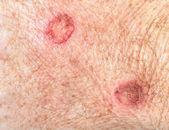 Skin cryotherapy — Stock Photo