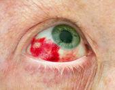 Hemorrhage in Eye — Stock Photo