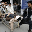 Stock Photo: victim of orakzai agency bomb blast being shifted at lady reading hospital for treatment