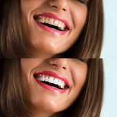 Whitening treatment. Before and after — Stock Photo