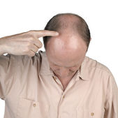 Human hair loss - adult man hand pointing his bald head — Stock Photo