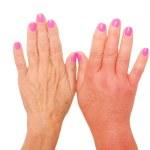Swollen hand — Stock Photo