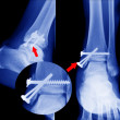 X ray of fractures bone — Stock Photo