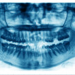 Stock Photo: Panoramic dental X-Ray