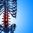 Detail of skeleton spinal and rib in pain — Stock Photo #26954621