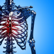 Skeleton chest pain — Stock Photo