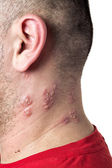 Shingles virus — Stock Photo