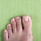 Ingrown toe nail — Stock Photo