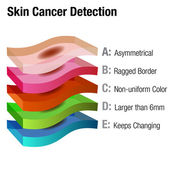Skin Cancer Detection — Stock Vector