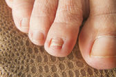 Regrown Foot Nail — Stock Photo