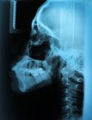 X-Ray Skull — Stock Photo