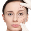 Correction lines on woman face, before surgery operetion — Stock Photo #8641259