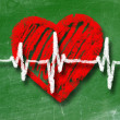 Heartbeat character and design, love heart on a chalkboard - Stock Photo