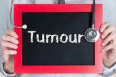 Tumour — Stock Photo