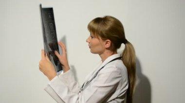 Magnetic resonance imaging — Stock Video