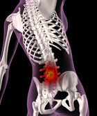 Back ache in a female skeleton — Stockfoto