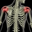 Stock Photo: Shoulder pain