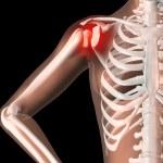 Female skeleton with shoulder pain — Stock Photo
