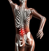 Female skeleton with backache — Stock Photo