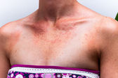 Sunburnt female skin with sun allergy — Stock Photo