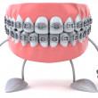 Braces — Stock Photo #21105121