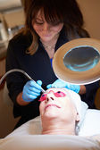 Woman Having dermabrasion Cosmetic Treatment — Stock Photo