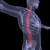 X-ray of the human spine — Stock Photo
