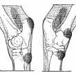 Defects of the Hock or Gambrel of a Horse, vintage engraving — 图库矢量图片