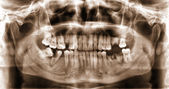 Panoramic dental x-ray image of teeth. — Stock Photo