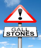 Gall stones concept. — Stock Photo