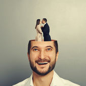 Couple in love kissing in the man's head — Stock Photo