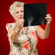 Senior Woman Holding X-ray - Stock Photo
