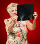 Senior Woman Holding X-ray — Stock Photo