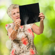 Sad Senior Woman Looking At X Ray — Foto Stock