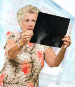 Senior Woman Holding X Ray Report — Stock Photo