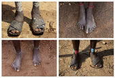 Foots of the Ethiopian women. — Stock Photo