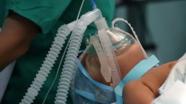 Unidentified Child with an oxygen mask on a critical surgery — Stock Video